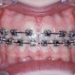2 - Appareils dentaires proposés par chaque orthodontiste dans appareils proposés metallique1-150x150